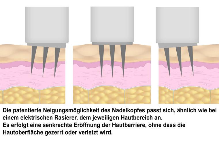 Anti Aging - Behandlung in der Naturheilpraxis in Pfarrkirchen