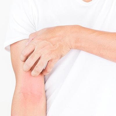 Behandlung von Ekzemen bei Heilpraktikerin Holm